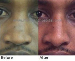 depressed nose bridge and nose tip, nose job