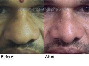 rhinoplasty worth it? rhinoplasty in hyderabad