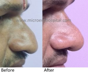 Nose Tip Elevation Rhinoplasty