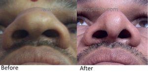 Nose Tip Rhinoplasty