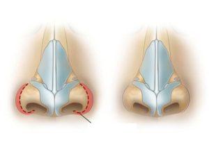 advanced rhinoplasty equipment, nose reshaping, nose job