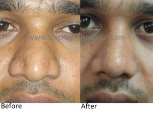 broad nose rhinoplasty, nose job