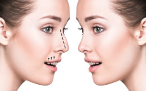 female rhinoplasty in Hyderabad