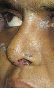 small nose rhinoplasty in Hyderabad